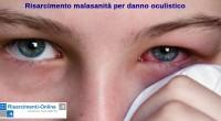 Il risarcimento malasanità per danno oculistico è una materia specialistica nella quale è necessaria un'attenda diagnosi e perizia medico legale.<br /> Il medico oculista è il professionista specializzato in oftalmologia che
