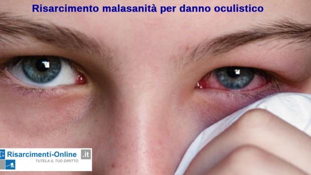 Il risarcimento malasanità per danno oculistico è una materia specialistica nella quale è necessaria un'attenda diagnosi e perizia medico legale. Il medico oculista è il professionista specializzato in oftalmologia che […]